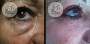 LMR - Blefaroplastia antes e depois