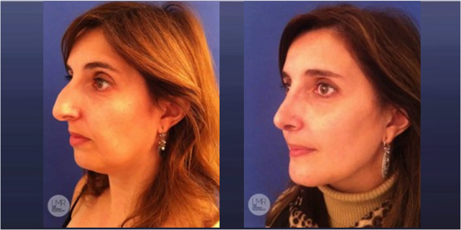 rinoplastia-antes-e-depois-vista-3-4
