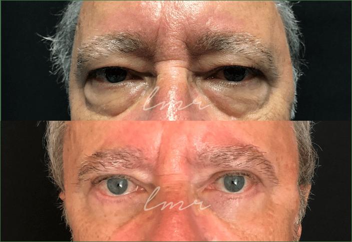 antes e depois da blefaroplastia - resultados
