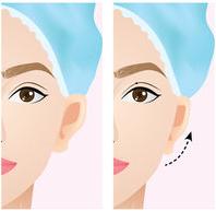 otoplastia cirurgia corrige orelhas de abano
