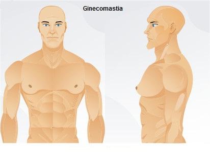 Ginecomastia: Gorduras na mama masculina
