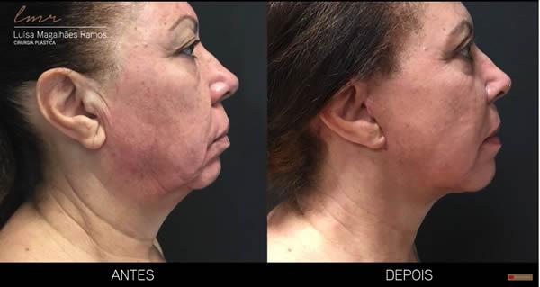 Lifting Facial e do Pescoço / Ritidectomia